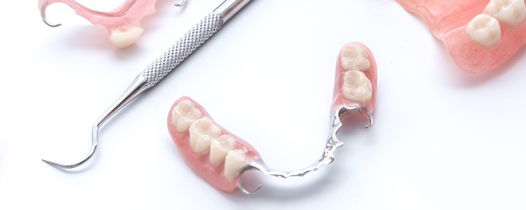 歯を失ってしまったところの治療について