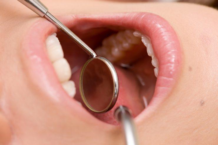 歯の根に膿が溜まったときの治療方法